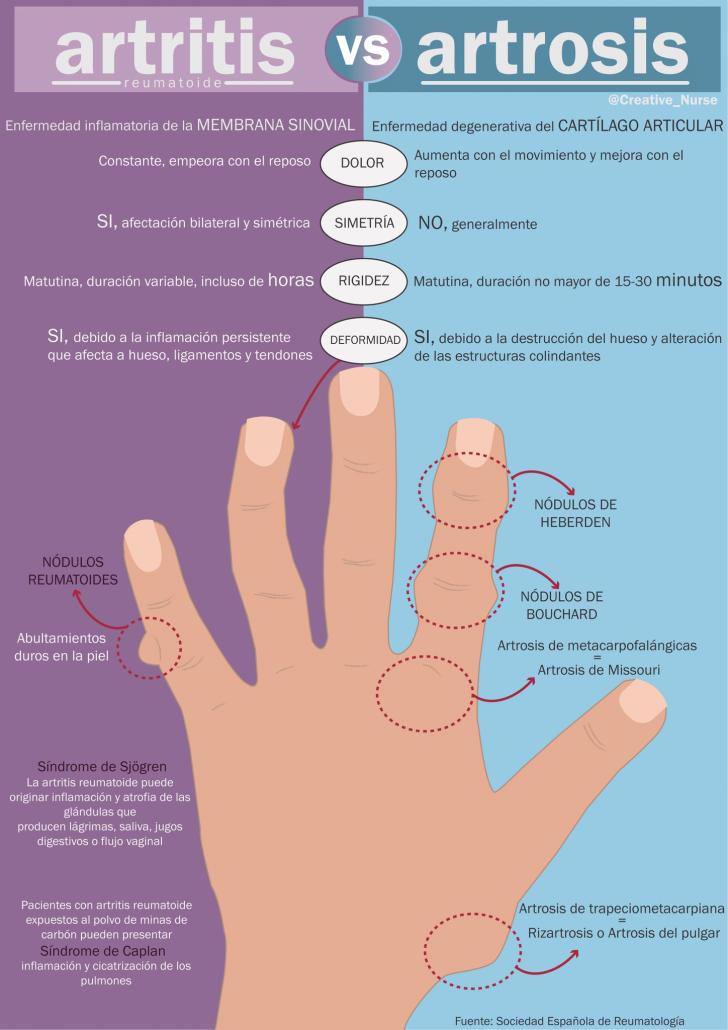 artrosis y artritis cual es la diferencia